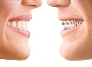 Clear and metal braces